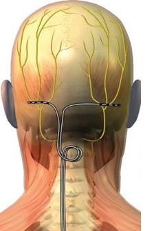 Stimulation occipitale NGO